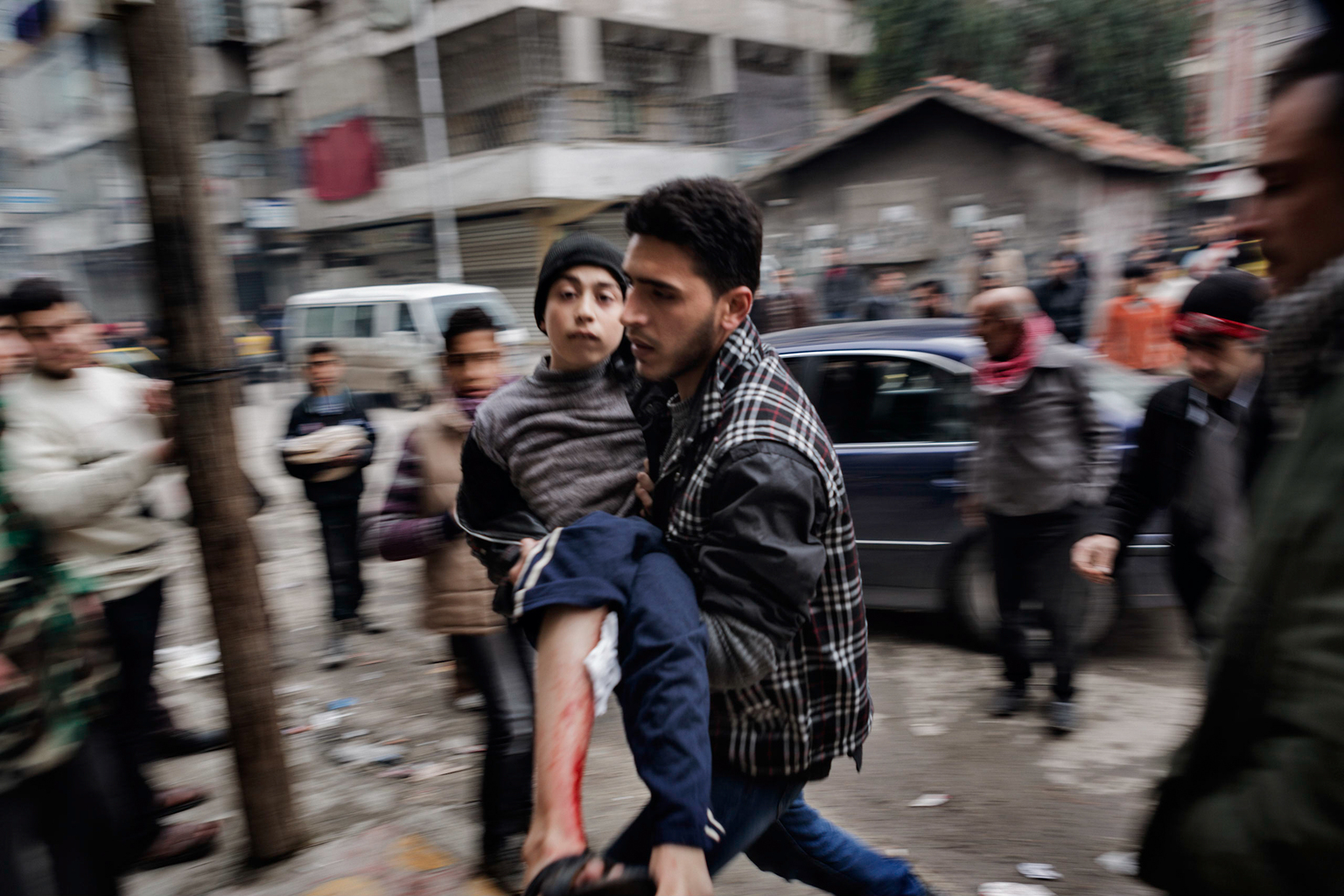 February 7, 2013, Shaar, Aleppo. A hospital worker rushes a boy wounded by Syrian Government shelling into a field hospital.